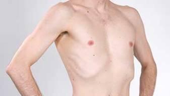 skinny-topless-man-small